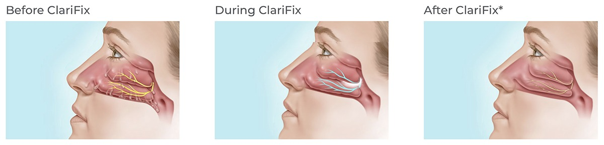 Clarifix at Texas Sinus and Snoring Spring Houston