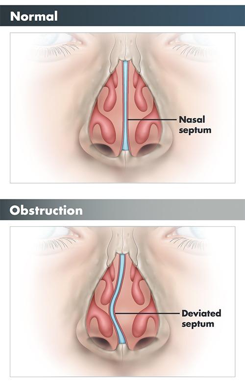 Deviated Septum Septoplasty Texas Sinus and Snoring Spring, TX
