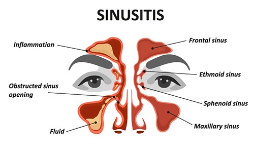 showing sinusitis in the sinuses